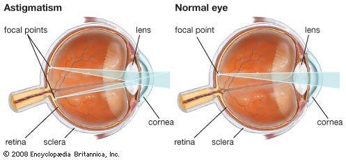 Asztigmiás szem (bal oldalt) és egészséges szem (jobb oldalt), Kép forrása: Enciclopeadia Britannica