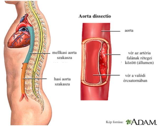 Aorta dissectio, Kép forrása: http://www.adamimages.com/
