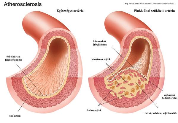 Atherosclerosis, Kép forrása: https://www.britannica.com/science/atherosclerosis